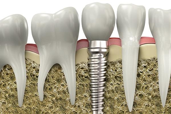 Dental implants replaces missing teeth.